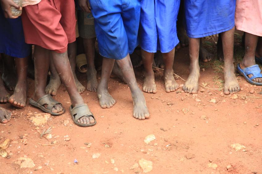 The Feet of Children Living in Poverty in Uganda, Africa